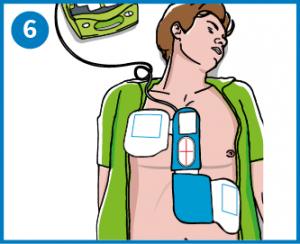 6 - Kiinnitä elektrodit