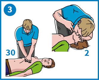 3 - Starta hjärt-lungredning