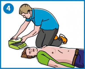4 - Nouda defibrillaattori