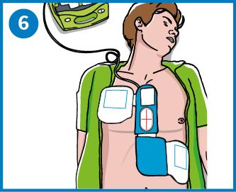 6 - Anslut elektroderna