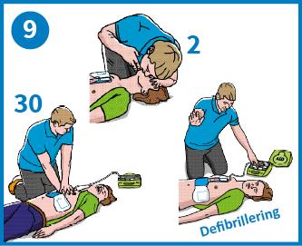 9 - Följ hjärtstartarens instruktioner